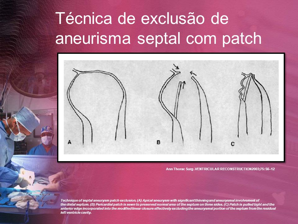 Técnica de exclusão de aneurisma septal com patch