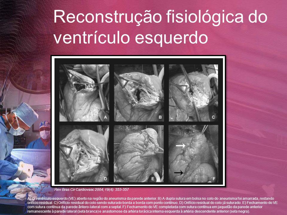 Reconstrução fisiológica do ventrículo esquerdo
