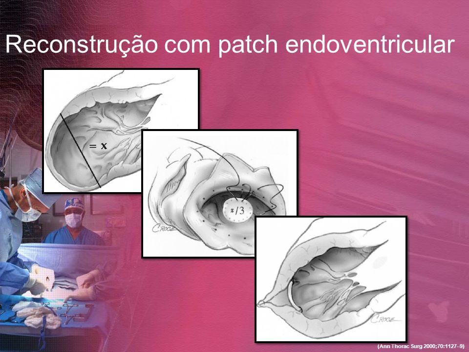 Reconstrução com patch endoventricular