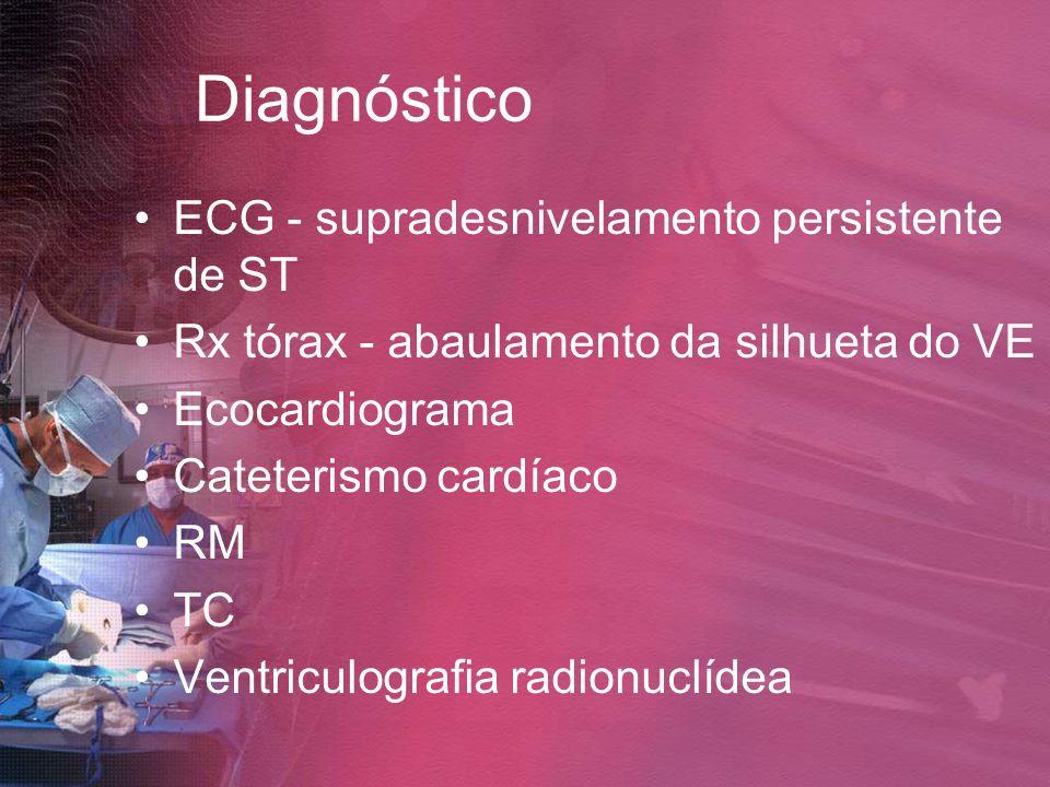 Diagnóstico ECG - supradesnivelamento persistente de ST