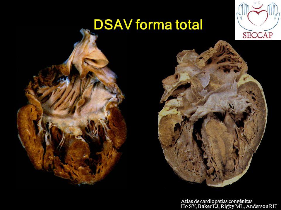 DSAV forma total Atlas de cardiopatias congênitas