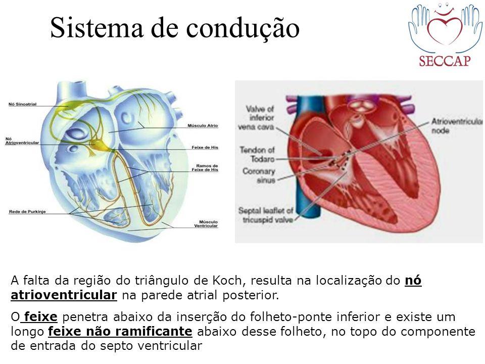 Sistema de condução A falta da região do triângulo de Koch, resulta na localização do nó atrioventricular na parede atrial posterior.