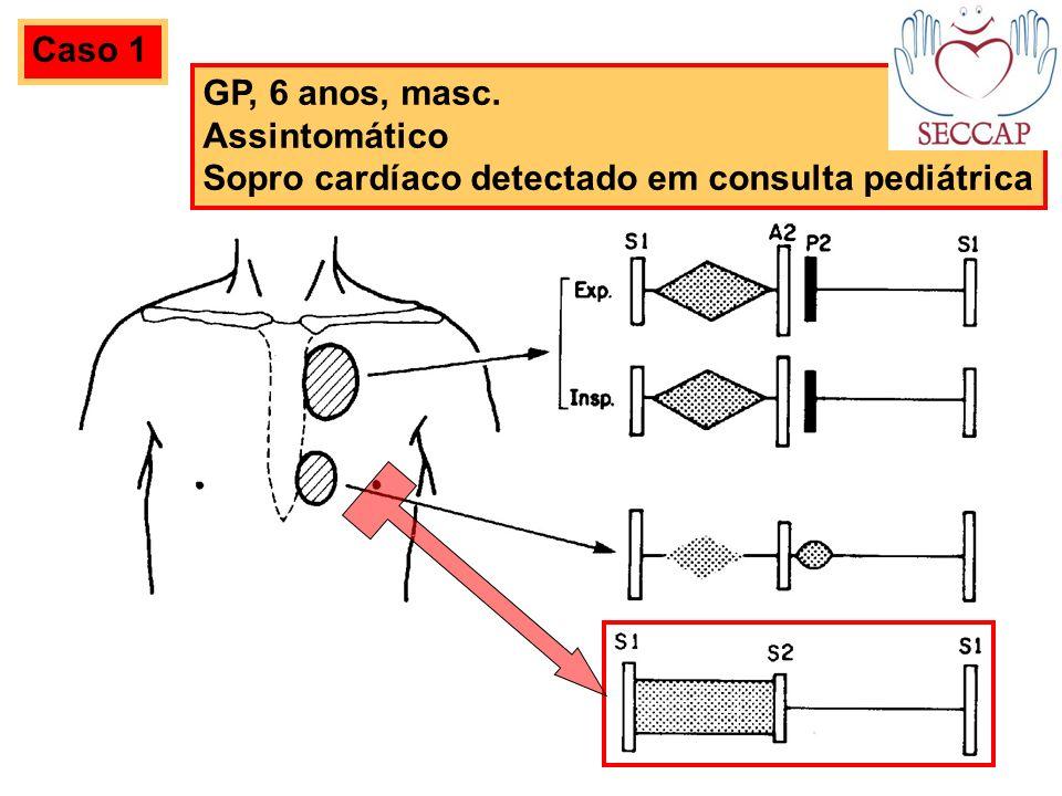 Caso 1 GP, 6 anos, masc. Assintomático Sopro cardíaco detectado em consulta pediátrica