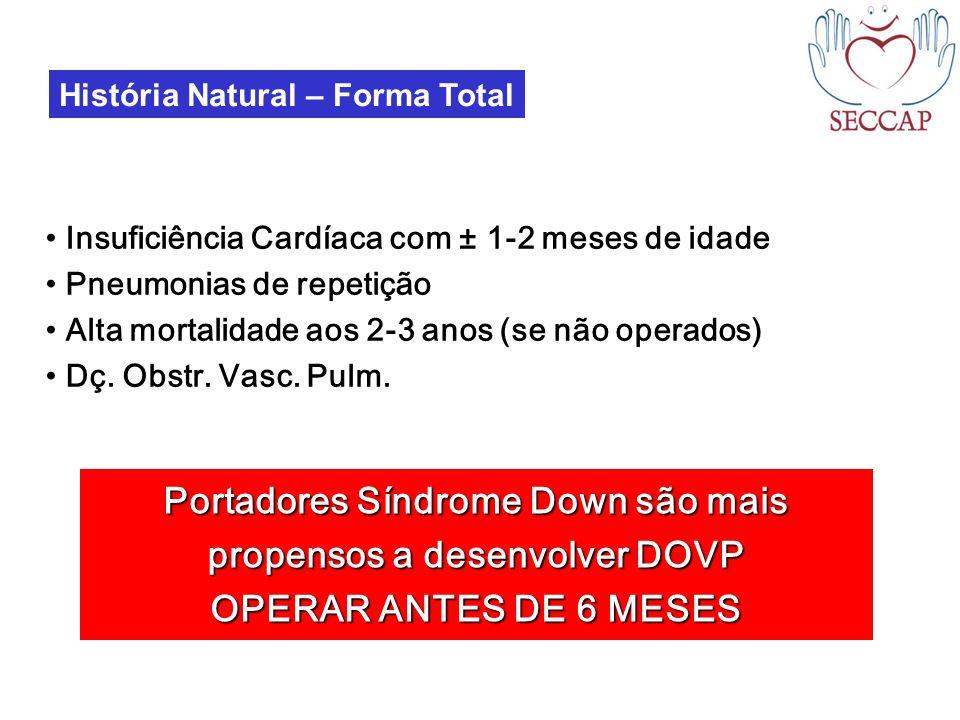 Portadores Síndrome Down são mais propensos a desenvolver DOVP