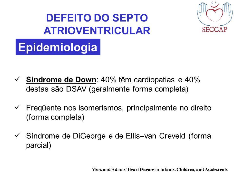 DEFEITO DO SEPTO ATRIOVENTRICULAR
