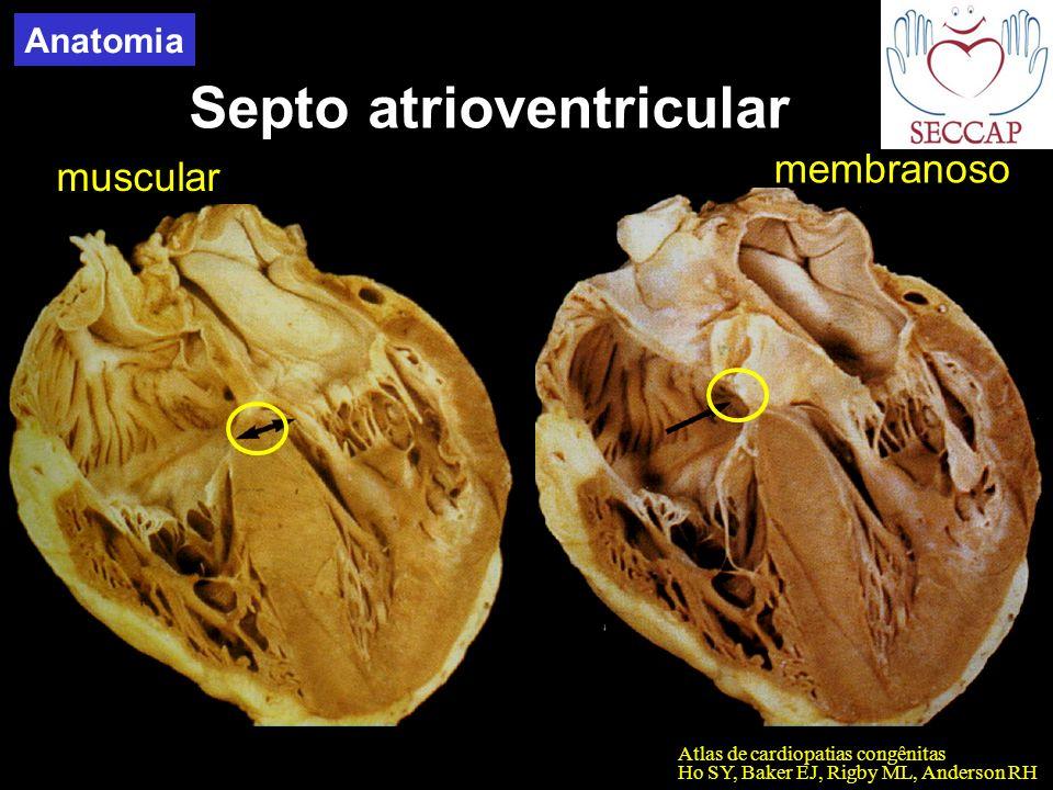 Septo atrioventricular