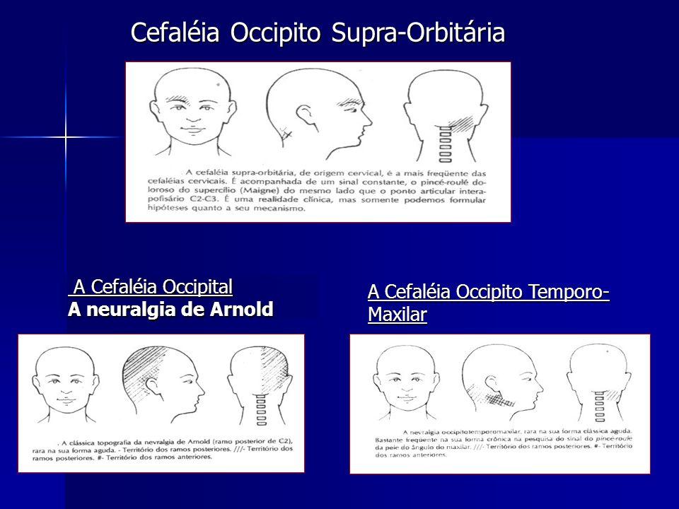 Cefaléia Occipito Supra-Orbitária