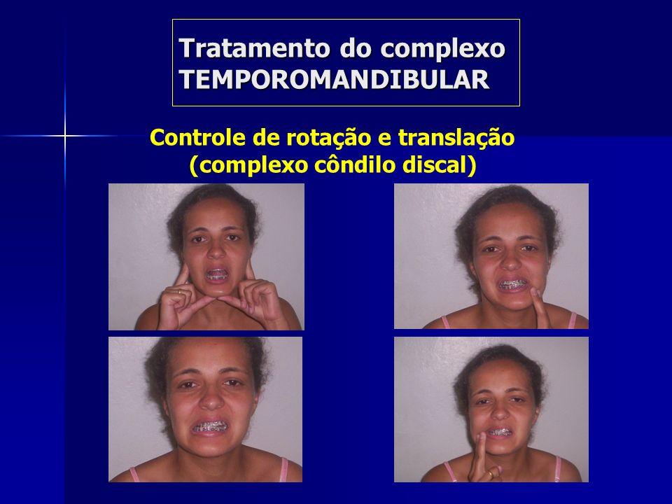 Tratamento do complexo TEMPOROMANDIBULAR