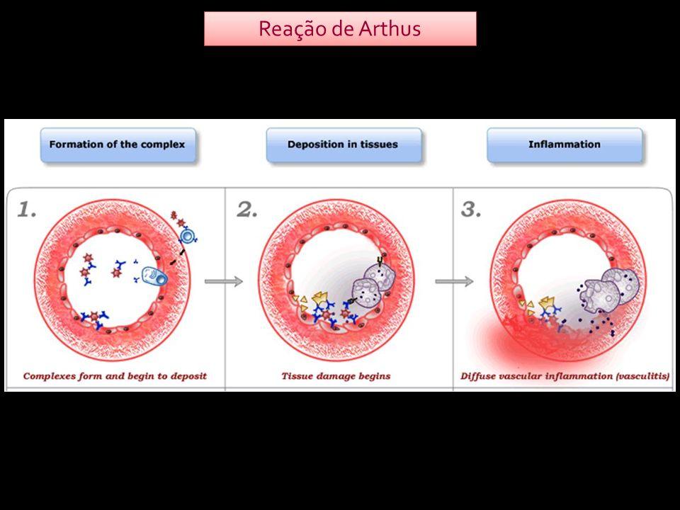 Reação de Arthus