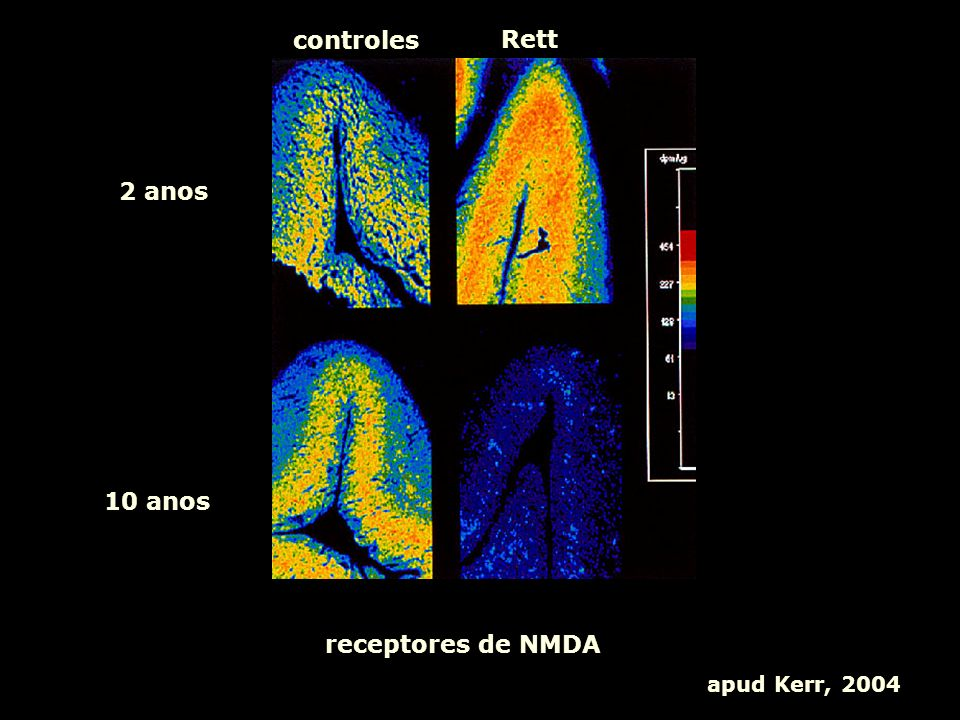 controles Rett 2 anos 10 anos receptores de NMDA apud Kerr, 2004