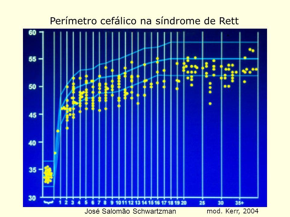 Perímetro cefálico na síndrome de Rett