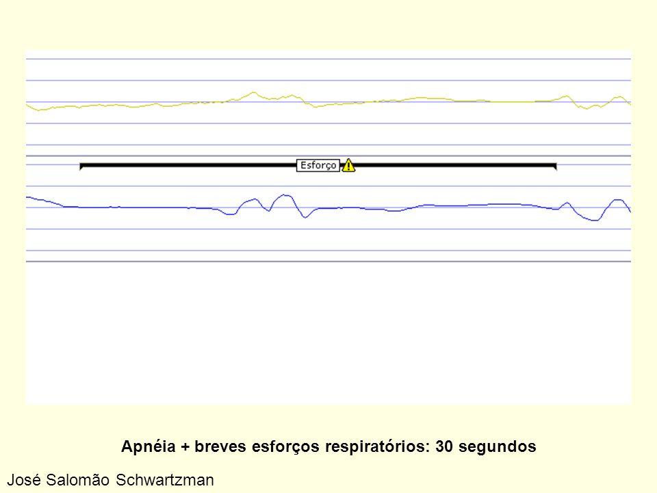 Apnéia + breves esforços respiratórios: 30 segundos