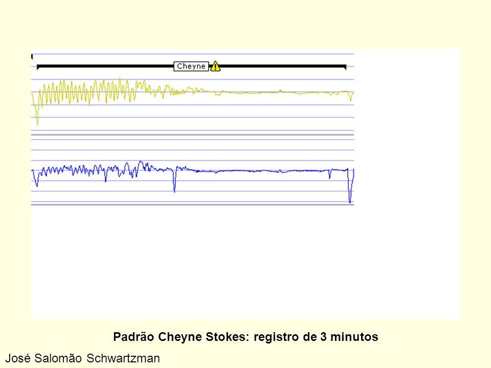 Padrão Cheyne Stokes: registro de 3 minutos
