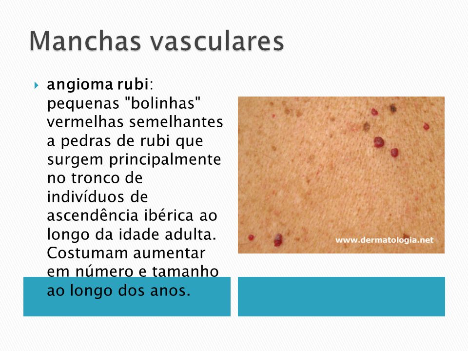Manchas vasculares