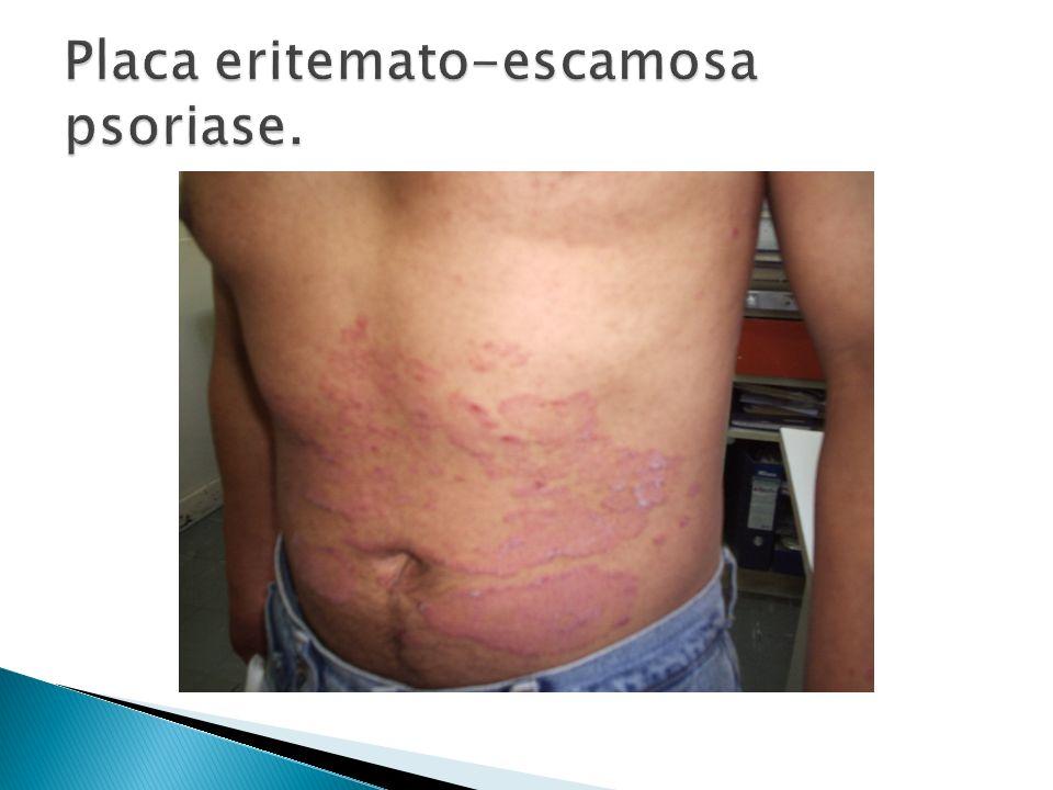 Placa eritemato-escamosa psoriase.