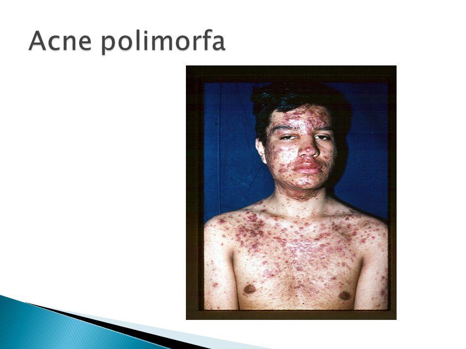 Acne polimorfa