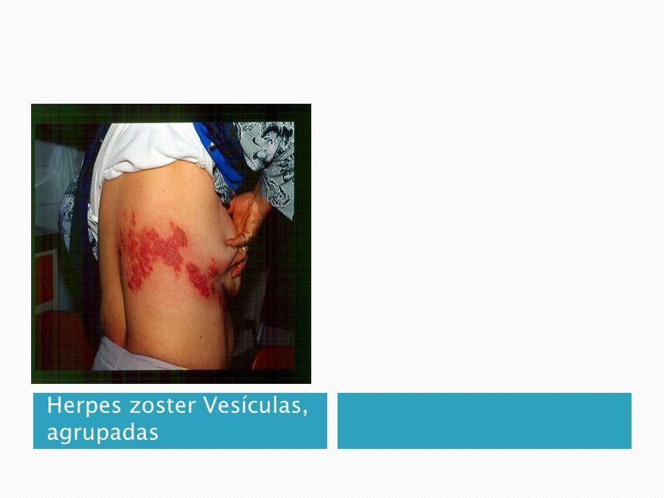 Herpes zoster Vesículas, agrupadas