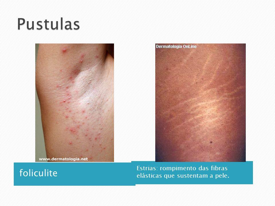 Pustulas foliculite Estrias: rompimento das fibras elásticas que sustentam a pele.