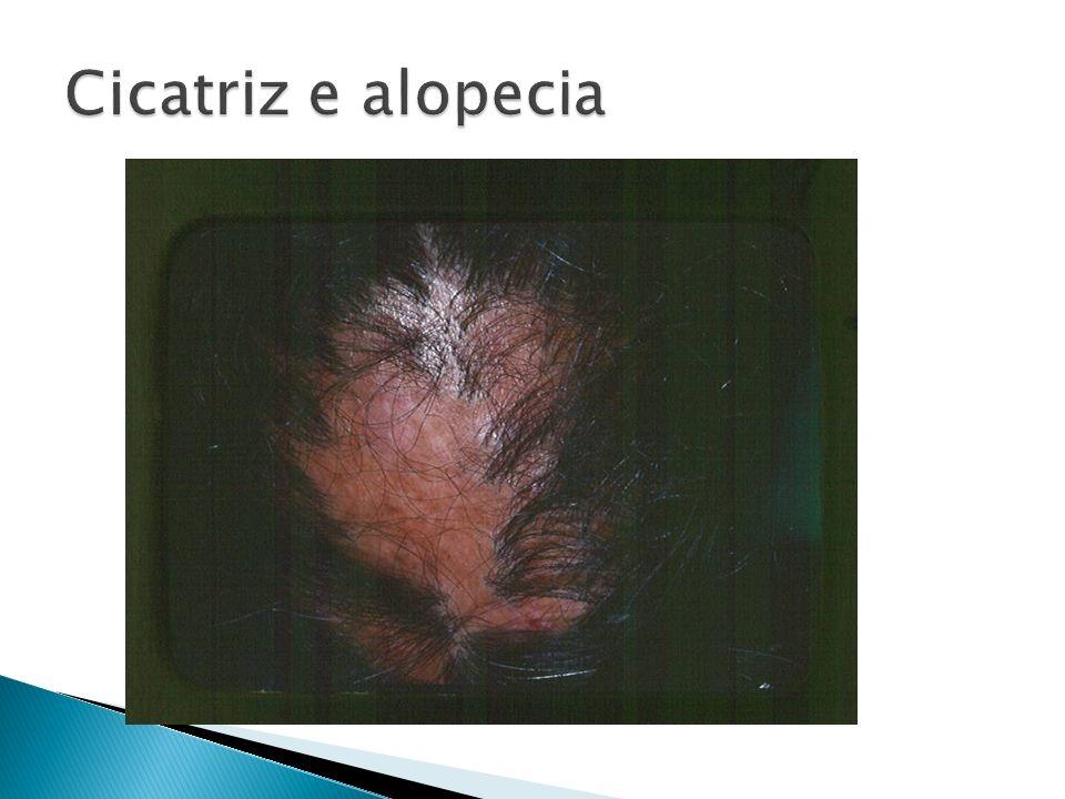 Cicatriz e alopecia