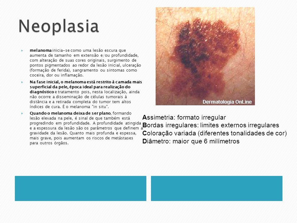 Neoplasia Assimetria: formato irregular