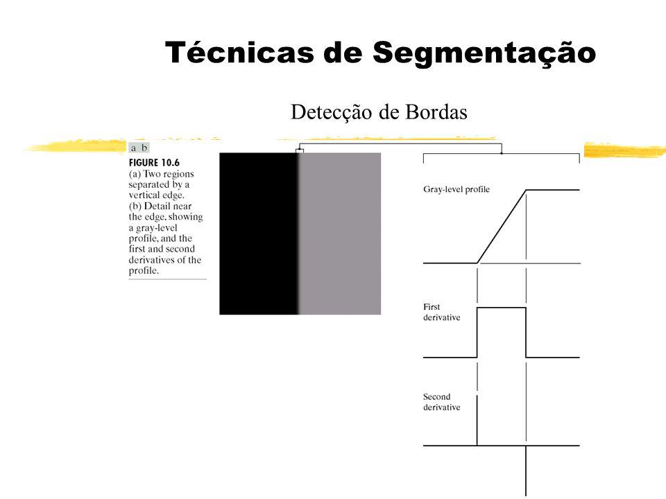 Técnicas de Segmentação