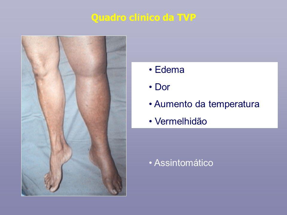Quadro clínico da TVP Edema Dor Aumento da temperatura Vermelhidão Assintomático