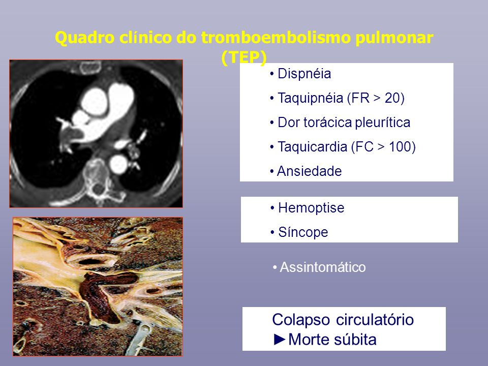 Quadro clínico do tromboembolismo pulmonar (TEP)