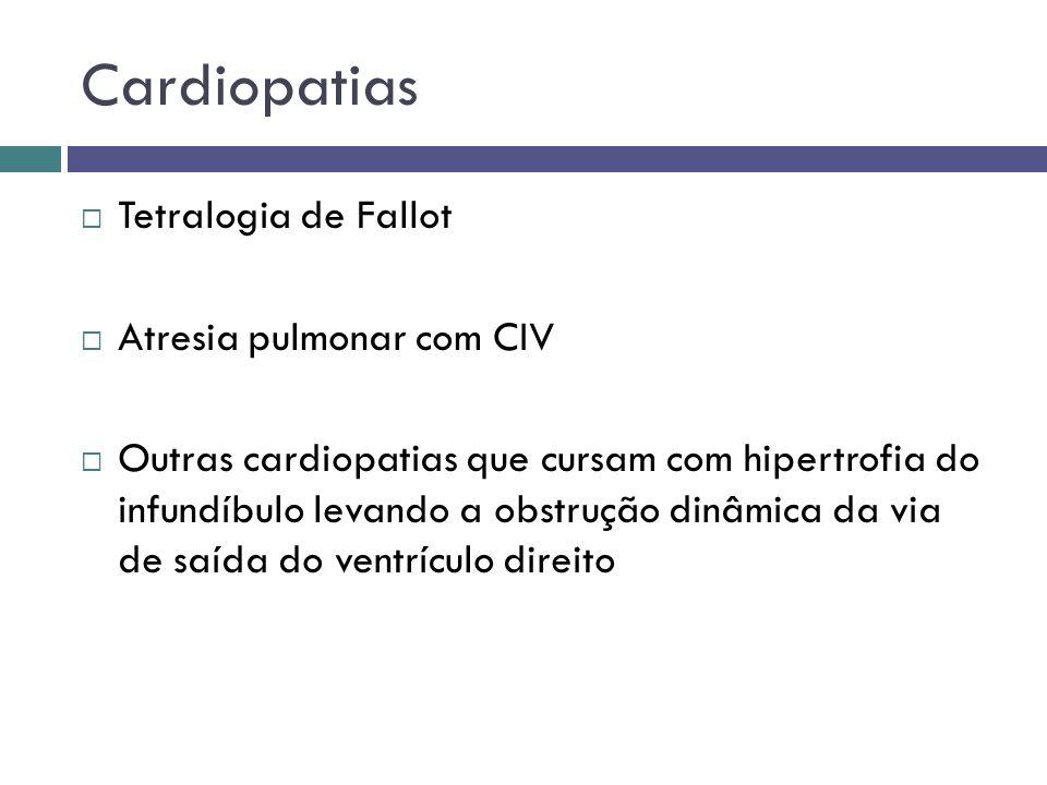 Cardiopatias Tetralogia de Fallot Atresia pulmonar com CIV