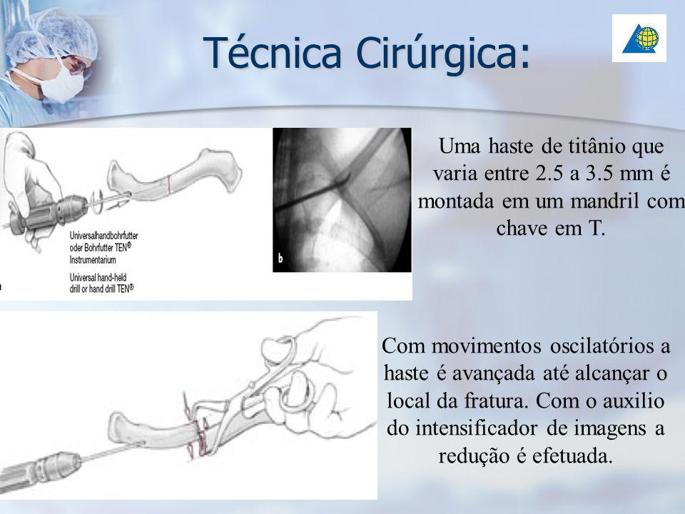 Técnica Cirúrgica:Uma haste de titânio que varia entre 2.5 a 3.5 mm é montada em um mandril com chave em T.