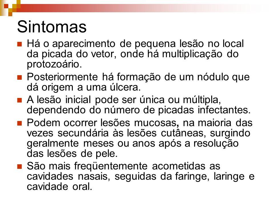 Sintomas Há o aparecimento de pequena lesão no local da picada do vetor, onde há multiplicação do protozoário.