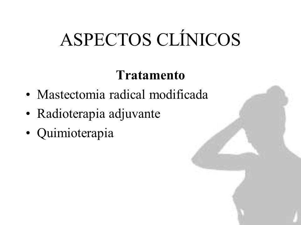 ASPECTOS CLÍNICOS Tratamento Mastectomia radical modificada