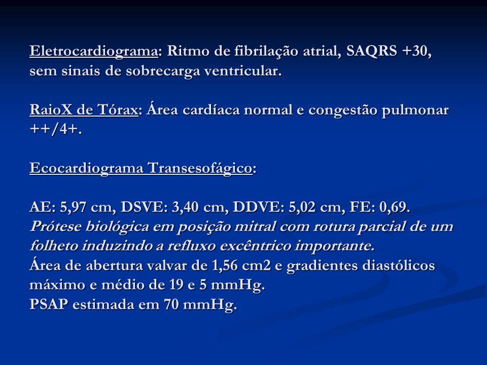 Eletrocardiograma: Ritmo de fibrilação atrial, SAQRS +30, sem sinais de sobrecarga ventricular.