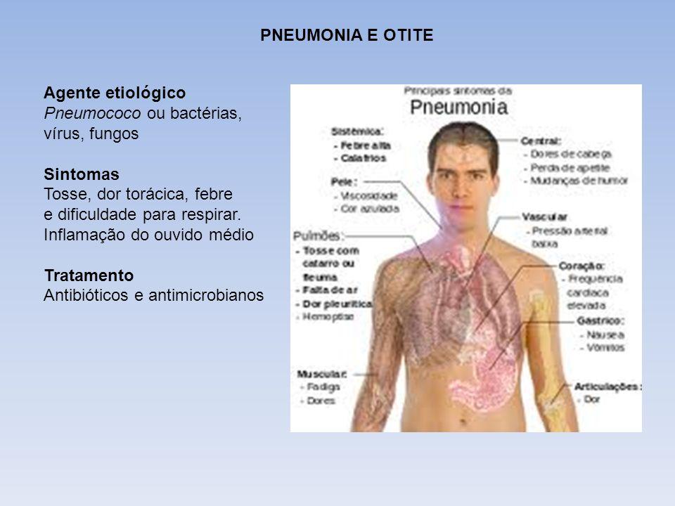 DIFTERIAPNEUMONIA E OTITE. Agente etiológico. Pneumococo ou bactérias, vírus, fungos. Sintomas. Tosse, dor torácica, febre.