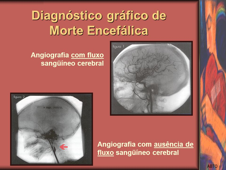 Diagnóstico gráfico de Morte Encefálica