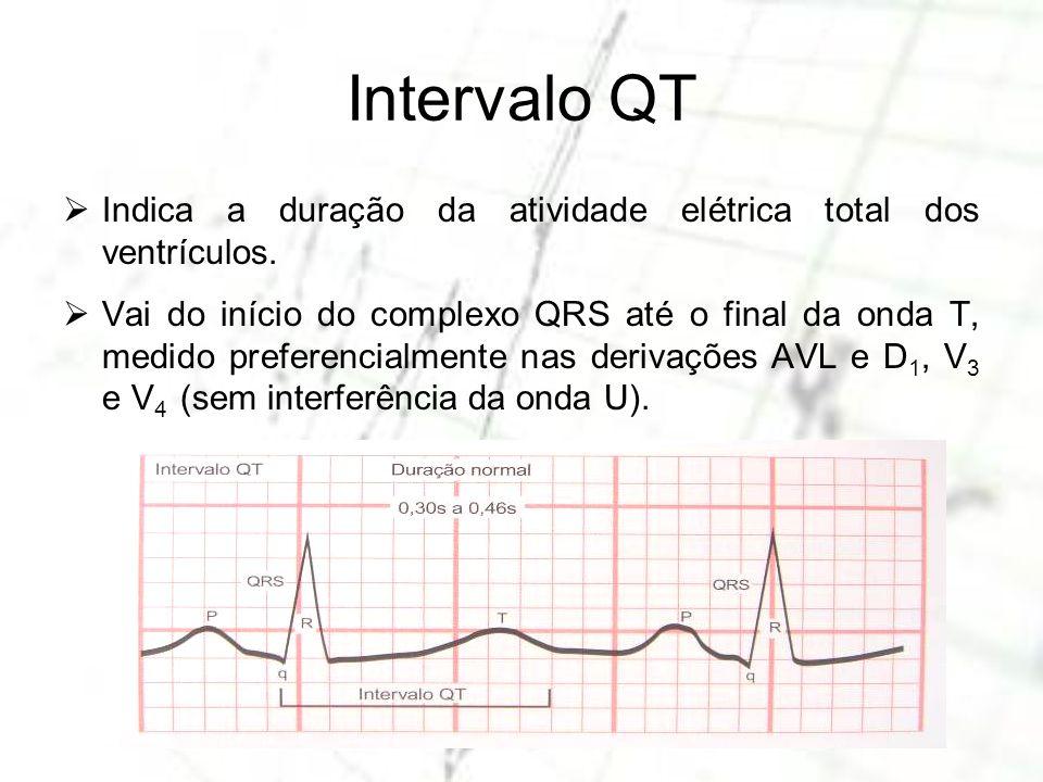Intervalo QT Indica a duração da atividade elétrica total dos ventrículos.