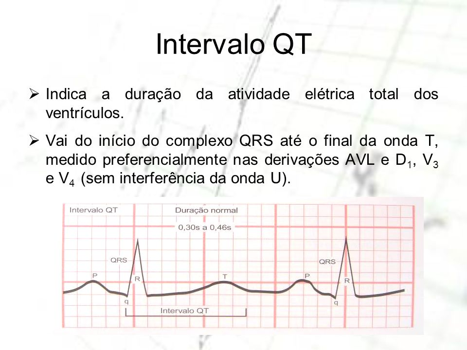 Intervalo QTIndica a duração da atividade elétrica total dos ventrículos.