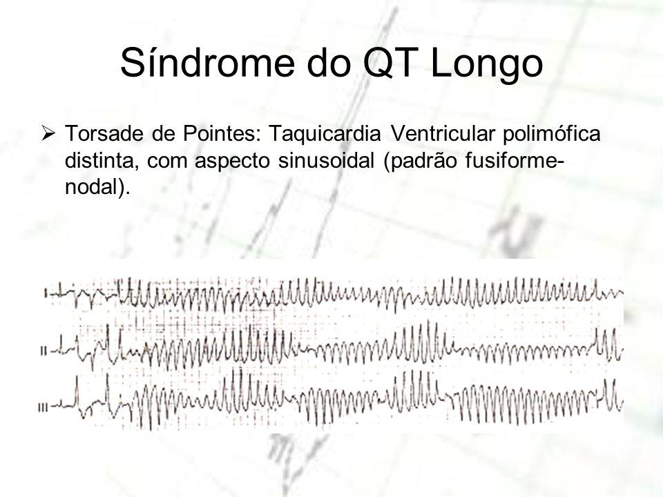 Síndrome do QT Longo Torsade de Pointes: Taquicardia Ventricular polimófica distinta, com aspecto sinusoidal (padrão fusiforme-nodal).