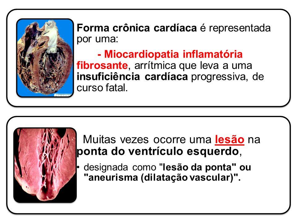 Forma crônica cardíaca é representada por uma: