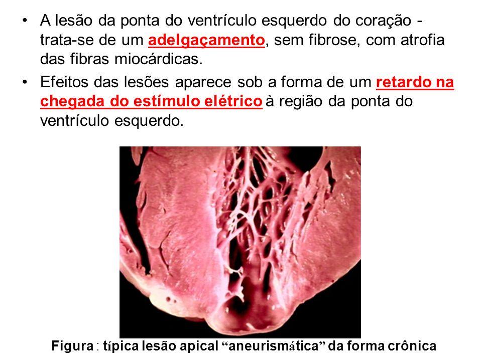 A lesão da ponta do ventrículo esquerdo do coração - trata-se de um adelgaçamento, sem fibrose, com atrofia das fibras miocárdicas.