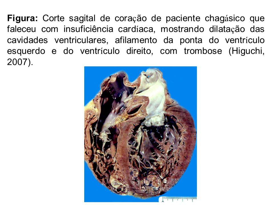 Figura: Corte sagital de coração de paciente chagásico que faleceu com insuficiência cardíaca, mostrando dilatação das cavidades ventriculares, afilamento da ponta do ventrículo esquerdo e do ventrículo direito, com trombose (Higuchi, 2007).