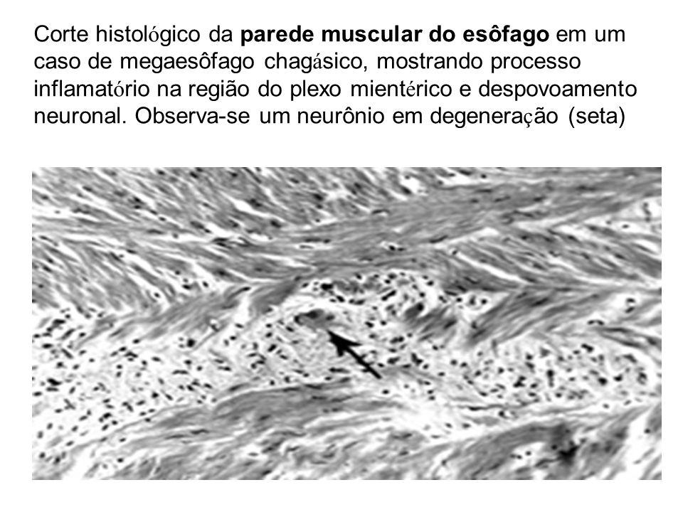 Corte histológico da parede muscular do esôfago em um caso de megaesôfago chagásico, mostrando processo inflamatório na região do plexo mientérico e despovoamento neuronal.