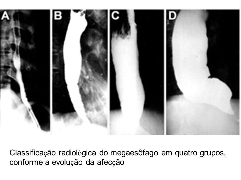 Classificação radiológica do megaesôfago em quatro grupos,