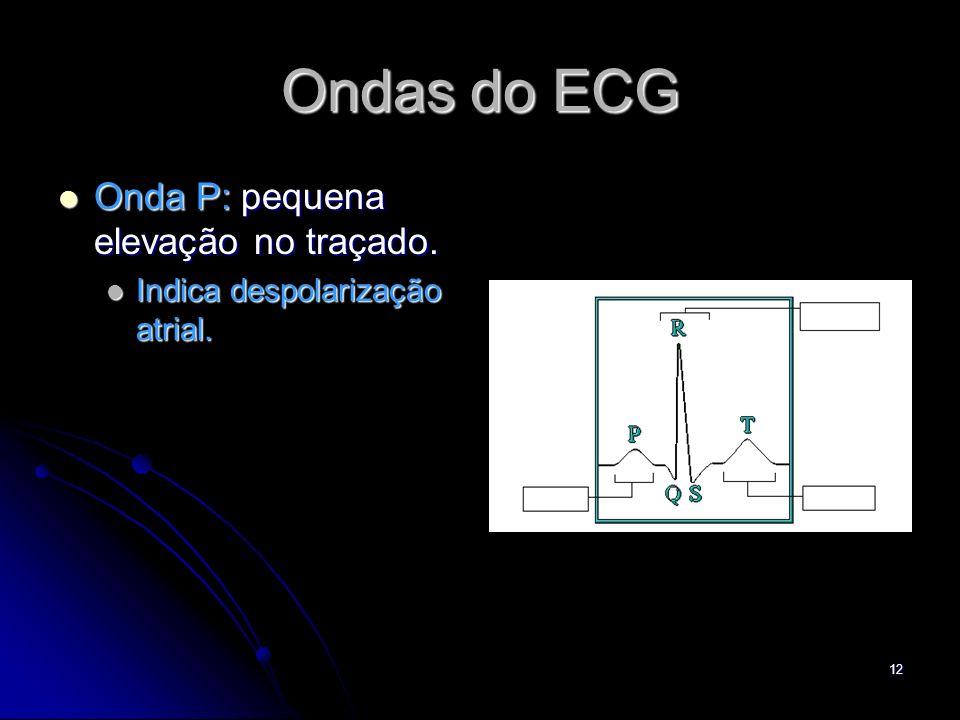Ondas do ECG Onda P: pequena elevação no traçado.