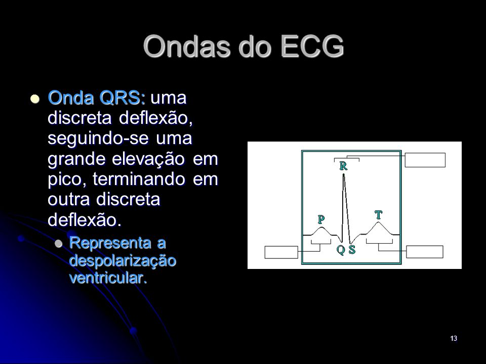 Ondas do ECG Onda QRS: uma discreta deflexão, seguindo-se uma grande elevação em pico, terminando em outra discreta deflexão.