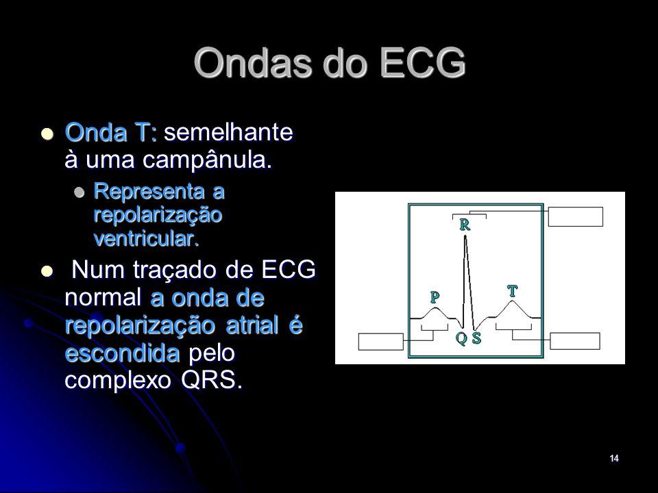 Ondas do ECG Onda T: semelhante à uma campânula.