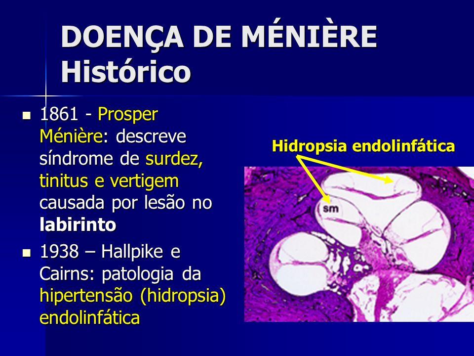 DOENÇA DE MÉNIÈRE Histórico