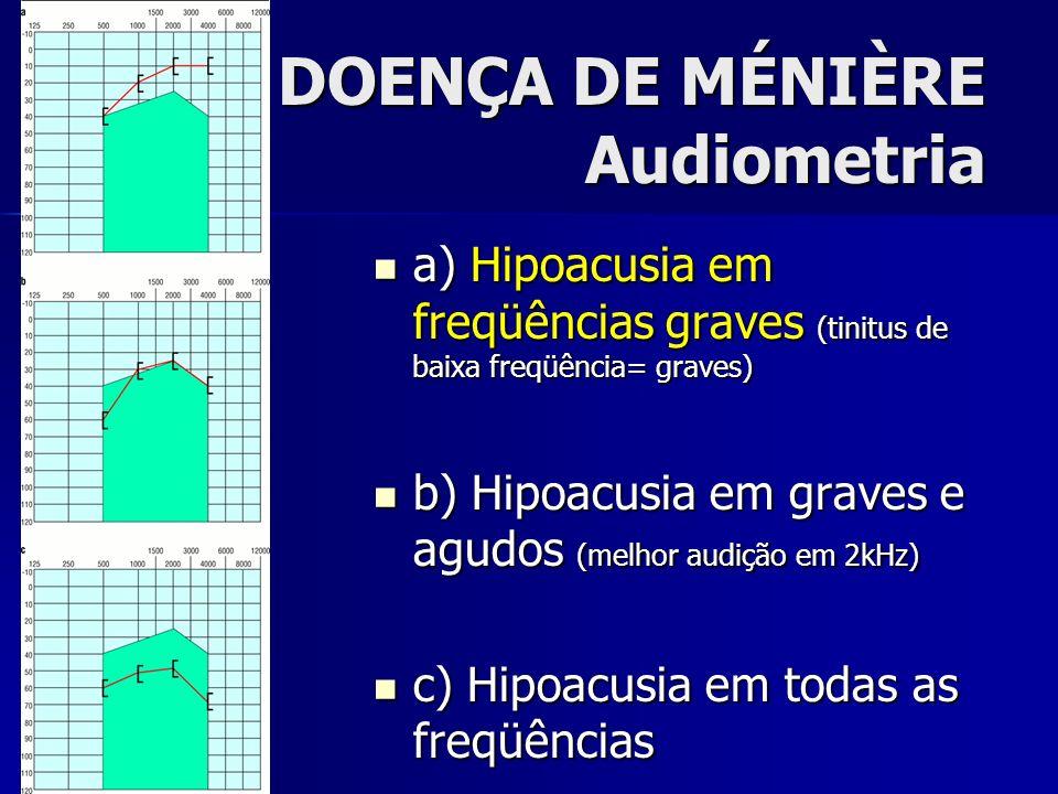DOENÇA DE MÉNIÈRE Audiometria