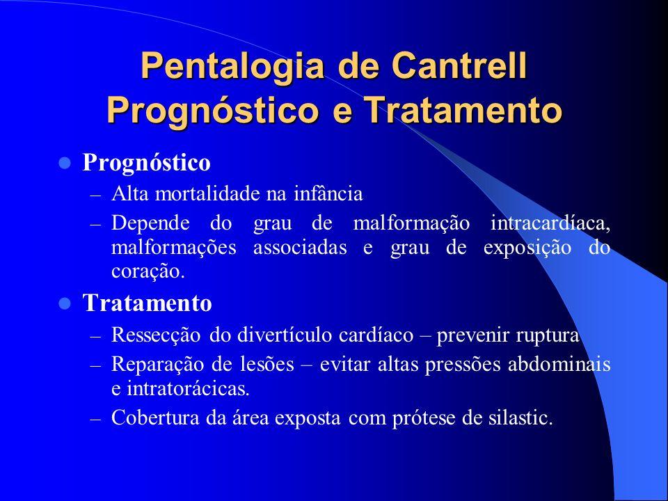 Pentalogia de Cantrell Prognóstico e Tratamento