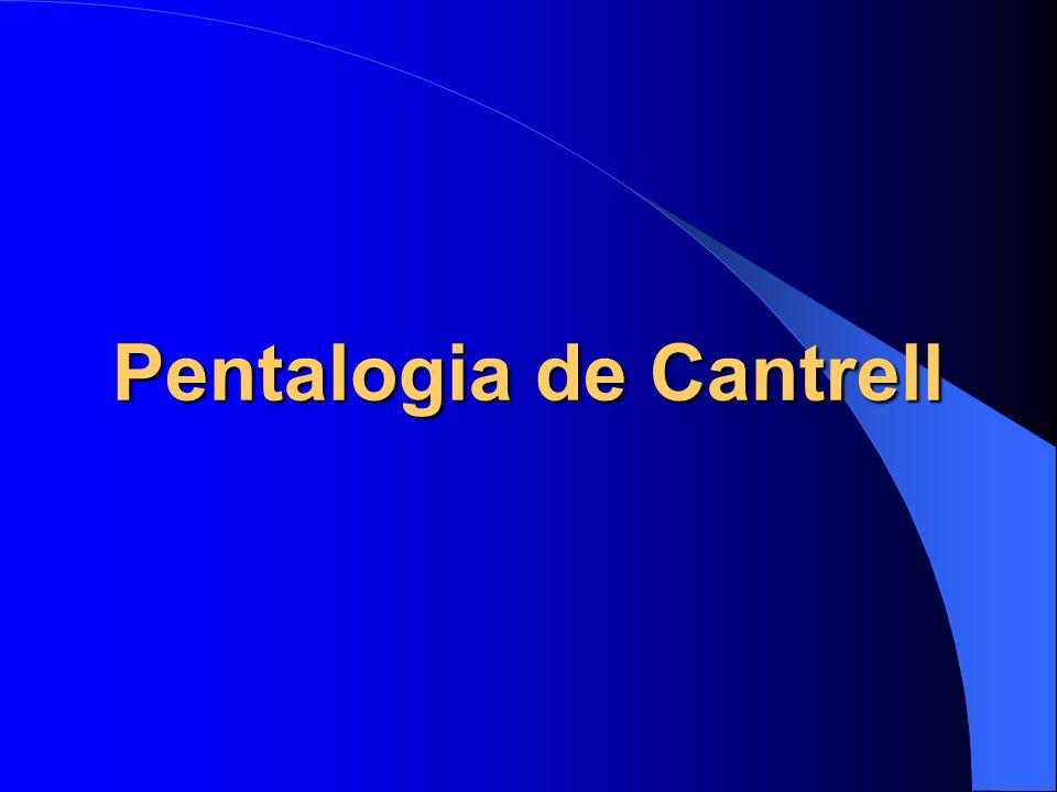 Pentalogia de Cantrell