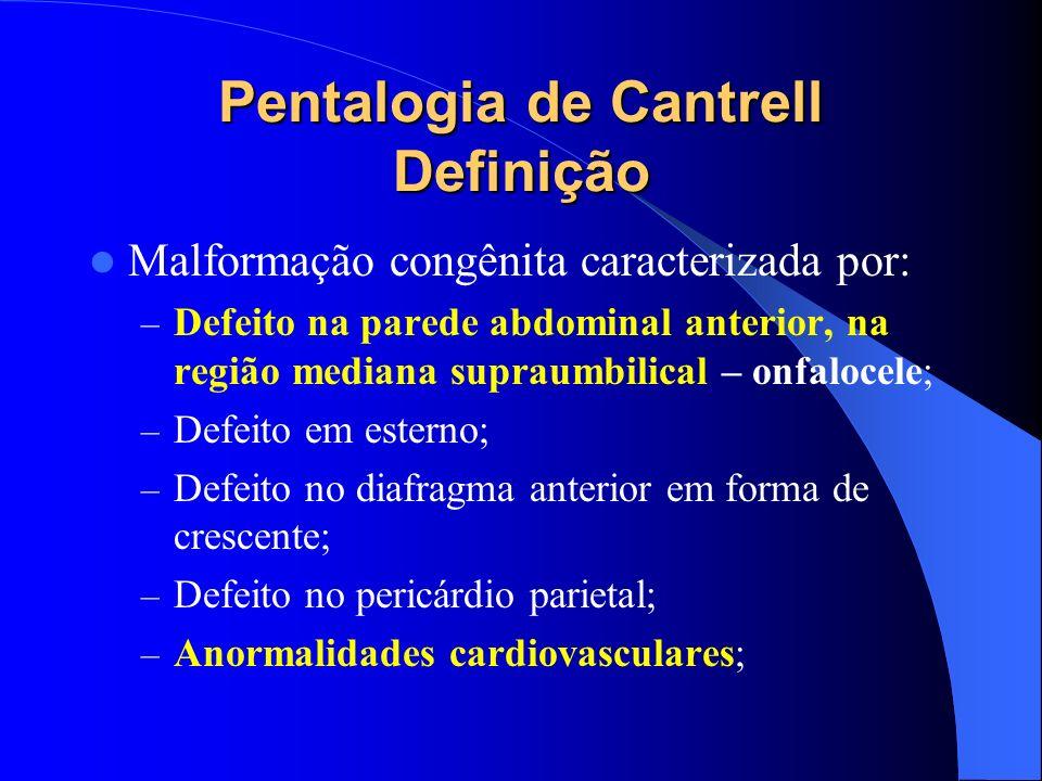 Pentalogia de Cantrell Definição